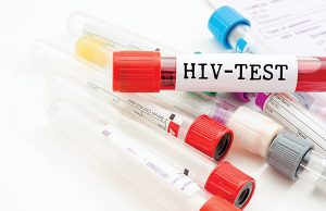 HIV-test---shutterstock_313118660-by-Gam1983