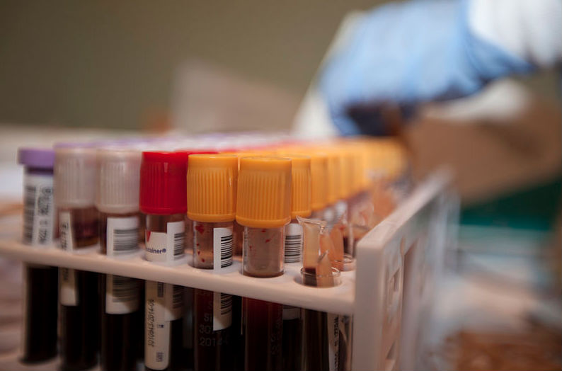 FDA lowers deferral period for donating blood to 3 months for gay and bisexual men